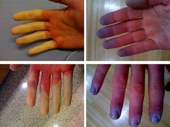 Возможные проявления болезни Рейно на руках