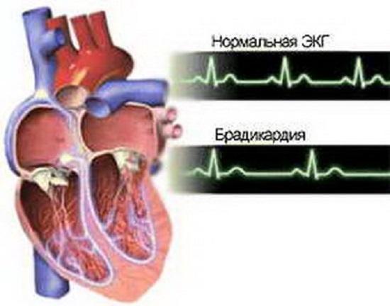 ЭКГ: сравнение нормальных показателей сердечного ритма и показателей при брадикардии