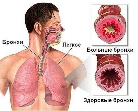 Бронхиальная астма виды причины симптомы лечение Изменения бронхов при бронхиальной астме рис 2