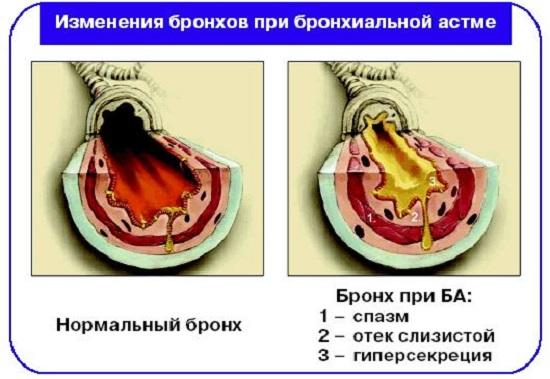 Бронхиальная астма виды причины симптомы лечение Изменения бронхов при бронхиальной астме