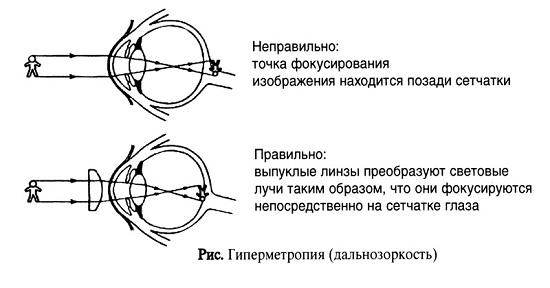 Нормальное зрение и зрение при дальнозоркости, сравнение