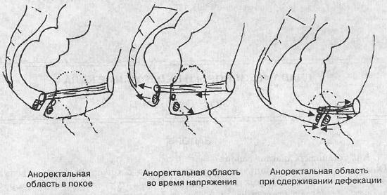 Схема действия аноректальной области при дефекации. Указание стрелок определяет направление сокращения и расслабления мышц в процессе дефекации. Открытие аноректального угла при дефекации обуславливает принятие им воронкообразной формы, за счет чего облегчается опорожнение