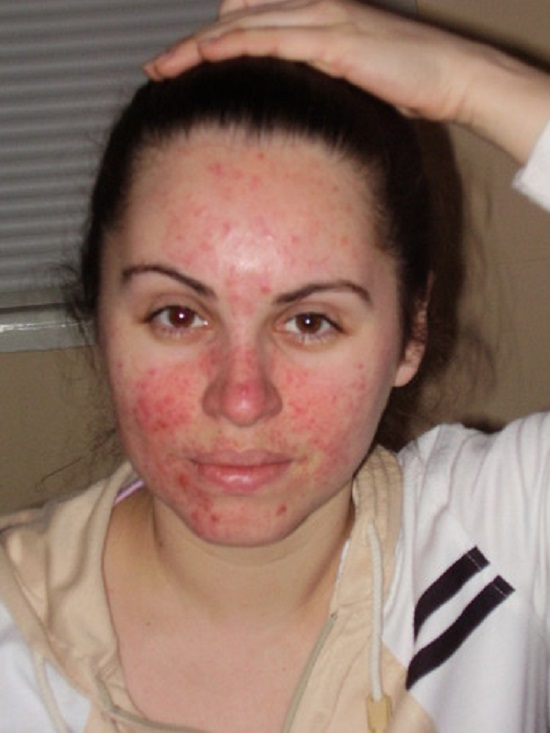 Поражение кожи лица при демодекозе: фото