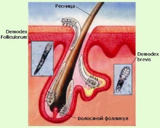 Среда обитания клеща при демодекозе