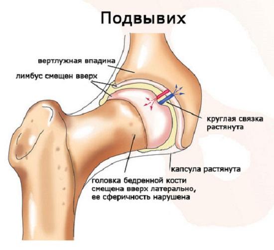 Двусторонняя дисплазия тазобедренных суставов у взрослых цито артроскопия коленного сустава стоимость