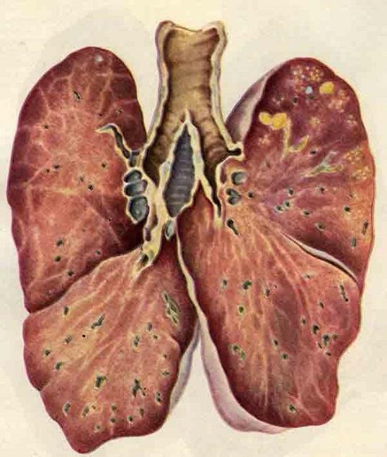 Фиброзно-очаговый туберкулез легких