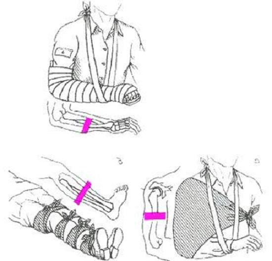 Фиксация закрытых переломов (рис. 1)