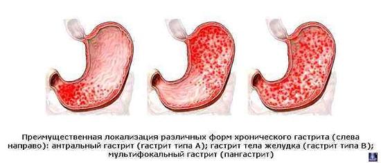 Хронический смешанный поверхностный и атрофический гастрит