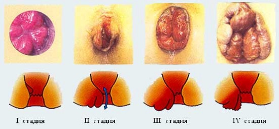 Заболевания после аналного секса