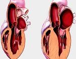Атрофия левого желудочка сердца что это такое
