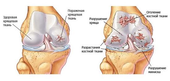 Остеоартроз с преимущественным поражением крупных суставов болит нога под коленом варикоз