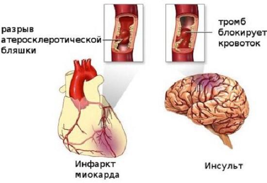 Инфаркт миокарда и инсульт