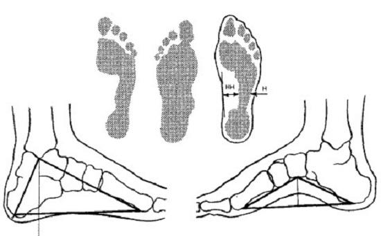 Клинический метод диагностики плоскостопия