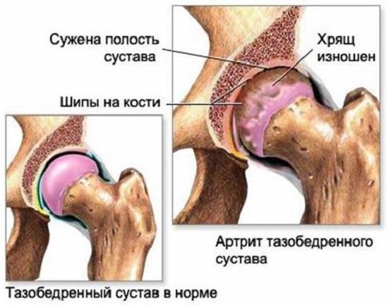 Коксартроз: особенности поражения тазобедренного сустава