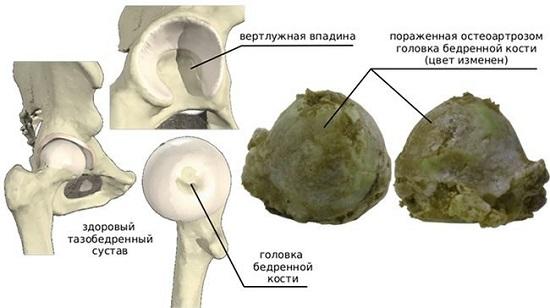 Тазобедренный сустав: особенности строения и поражения при коксартрозе