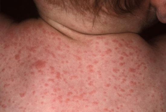 Поражение кожи при краснухе (фото 2)