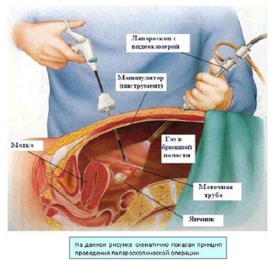 Внематочная беременность и тест