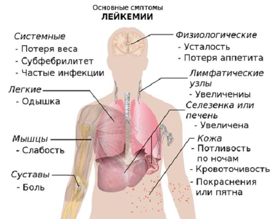 Лейкемия: виды, причины, признаки, симптомы, лечение