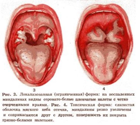 Характер плёночного поражения при локализованной и ограниченной форме дифтерии