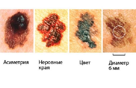 оформившиеся меланомы в активной фазе фото