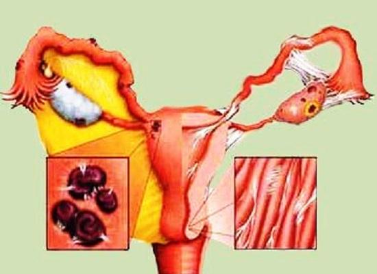 Очаги поражения при эндометриозе