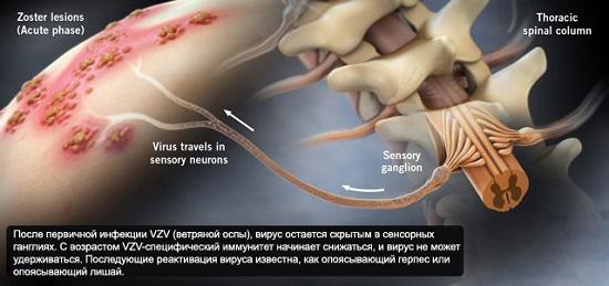 опоясывающий герпес у детей симптомы и лечение фото