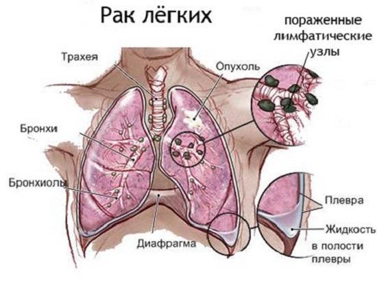 Особенности поражения при раке легких, анатомия области поражения