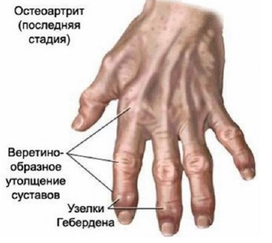 Остеоартроз кистей