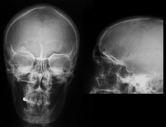 Остеоид-остеома черепа в области лобной пазухи, снимок