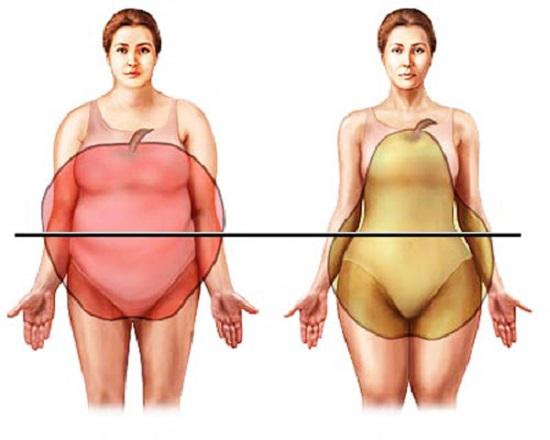 Типы фигуры при ожирении: «яблоко», «груша»