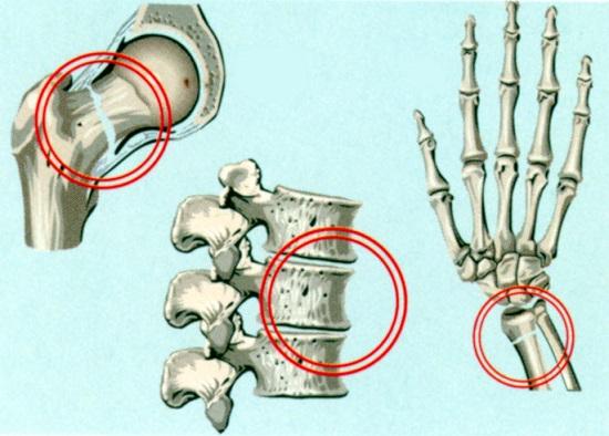 Области, в наибольшей степени подверженные переломам при остеопорозе