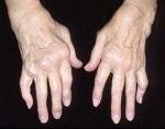 Полиартрит: симптомы
