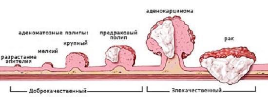 Осложнение удаления полипа анального прохода прямой кишки