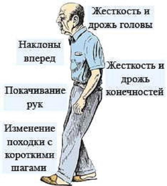 Положение тела при болезни Паркинсона, особенности