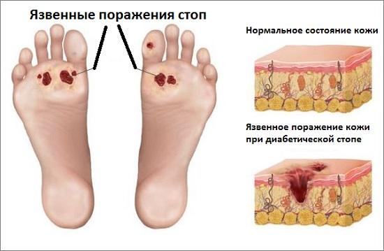 Диабетическая стопа: язвенное поражение кожи
