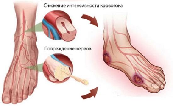 Поражения ног при диабете, определяющие его форму (ишемический, нейропатический диабет)