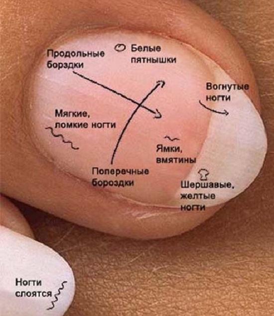 Внешние признаки грибкового поражения ногтей