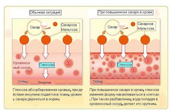 Сахарный диабет: норма и повышенный сахар в крови