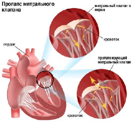 Клапан в норме и клапан при пролапсе
