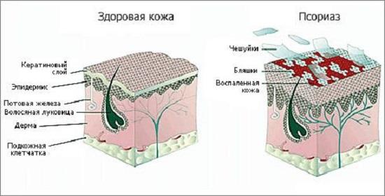 harakteristika-visipaniy-pri-psoriaze