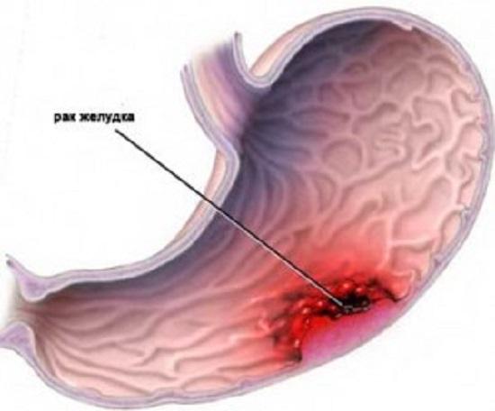 Рак желудка - причины, признаки, симптомы и лечение
