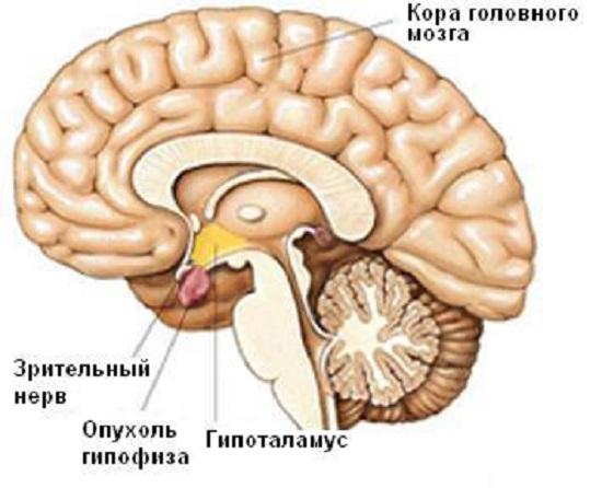 Область расположения аденомы гипофиза мозга