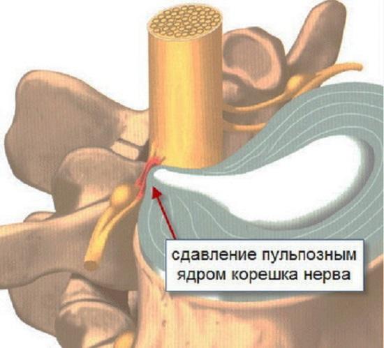 Сдавление корешка нерва при радикулите