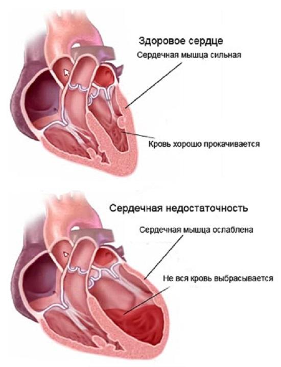 Работа сердца в норме и при сердечной недостаточности