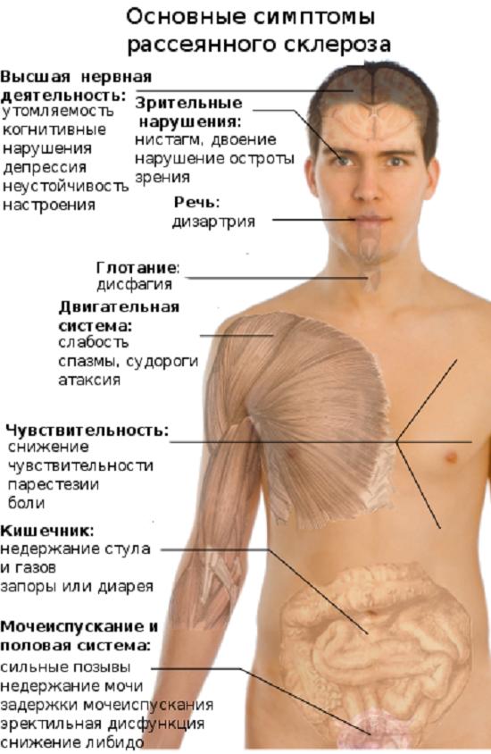 Шейный остеохондроз и рассеянный склероз
