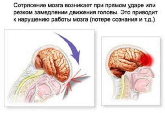 Причины сотрясения головного мозга