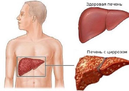 Вылечите цирроз печени