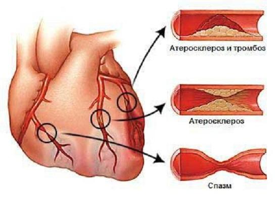 Особенности поражения коронарных артерий