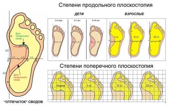 Плоскостопие: причины, признаки, симптомы и лечение