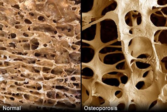 Структура костей в нормальном состоянии и при поражении остеопорозом